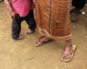Before treatment Loi's feet were severely twisted and she had to walk on the sides of her feet.  Each year it became more difficult for her to bear her own weight.